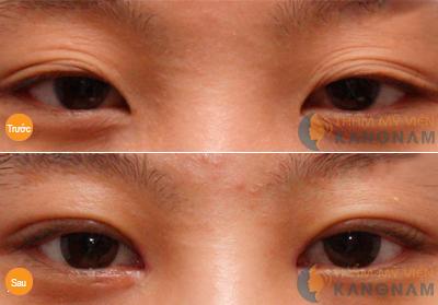 Đôi mắt được trẻ hóa rất nhiều sau khi cắt mí tại Kangnam