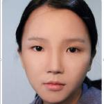 Vì sao 2 mí mắt không đều nhau – Nguyên nhân và cách khắc phục triệt để