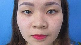 Tại sao 2 mí mắt không đều nhau? Cách khắc phục 2 mắt không đều nhau