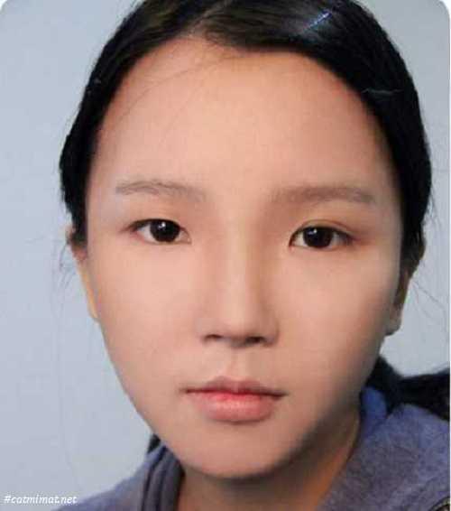 cắt mí mắt không đều