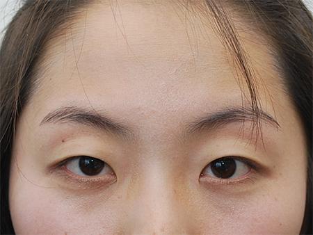 mắt nhiều da chùng