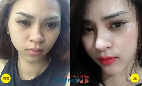 Người mẫu Kim Anh sau phẫu thuật cắt mí mắt