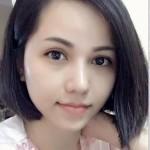 """Việt Kiều Singapore """"lột xác"""" sau phẫu thuật cắt mí mắt"""