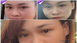 Cắt mí mắt bao lâu thì lành, hết sưng và có đôi mắt đẹp tự nhiên?