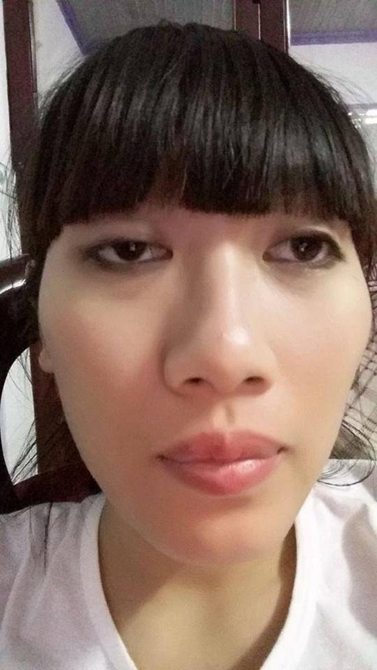 Bệnh sụp mí mắt bẩm sinh chữa thế nào? Chỉ định từ bác sỹ 1