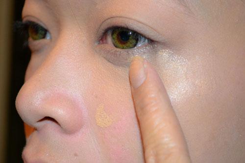 Bị bọng mỡ mắt dưới do lượng chất béo tích tụ lâu ngày