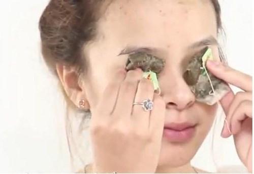 Bị bọng mắt dưới dùng túi trà có thể giúp khắc phục