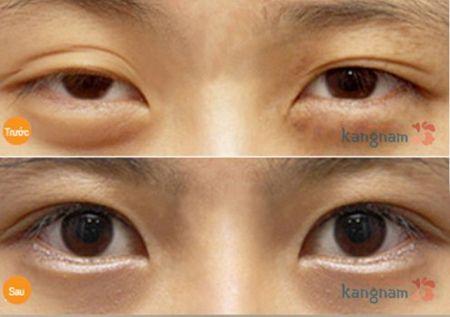 Bất ngờ với kết quả trị bọng mắt dưới tại Kangnam
