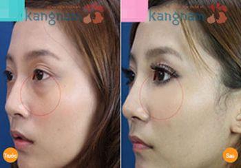 Kết quả lấy mỡ bọng mắt dưới tại Kangnam