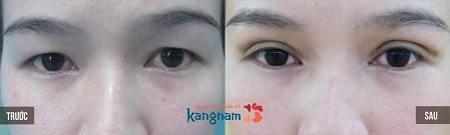 chữa sụp mí mắt tại nhà78