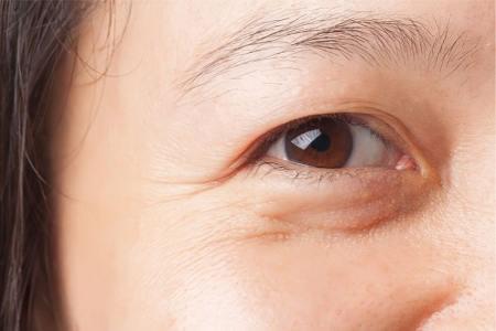chữa sụp mí mắt tại nhà56