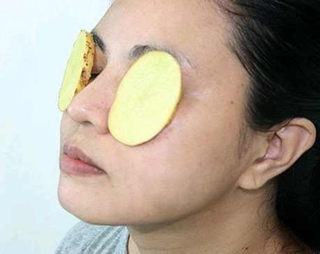cách trị quầng thâm mắt bẩm sinh 3