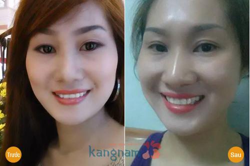 Cắt mắt 2 mí Kangnam có đẹp không? - Review mới nhất 7