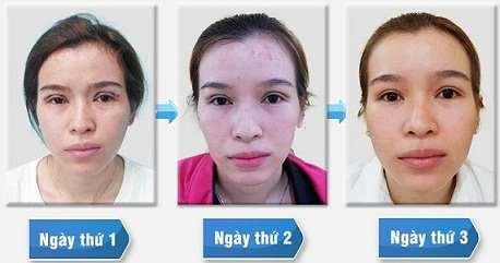 Phẫu thuật cắt mí mắt trên 3