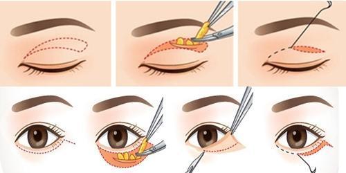 Cat mi mat59 Lấy hay cắt mỡ mí mắt có đau không?   đáp thắc mắc
