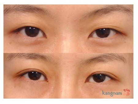 Cách chăm sóc sau cắt mí mắt 3