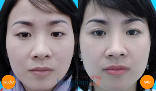 Phẫu thuật chữa sụp mí mắt bẩm sinh
