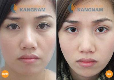 Nâng mí mắt bao nhiêu tiền tại Bệnh viện thẩm mỹ Kangnam? 1