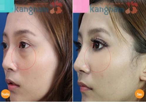 phẫu thuật cắt bọng mỡ mắt