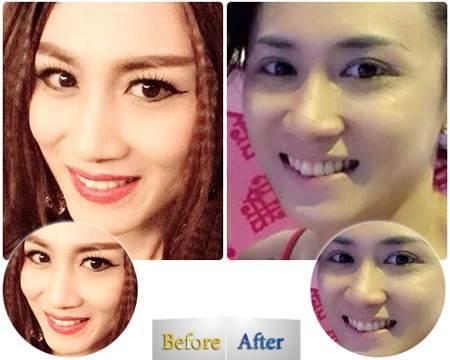 Chị Phương My sau cắt da chùng và mỡ thừa mí mắt tại Kangnam