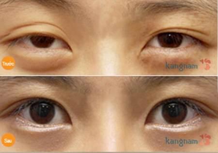 Trường hợp khắc phục da chùng mỡ thừa mí mắt lớn tại Kangnam