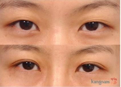 Kết quả khắc phục da chùng mỡ thừa mí mắt tại Kangnam