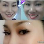 Cắt mí mắt có đau không? Review từ Khác Hàng thực tế tại BVTM Kangnam