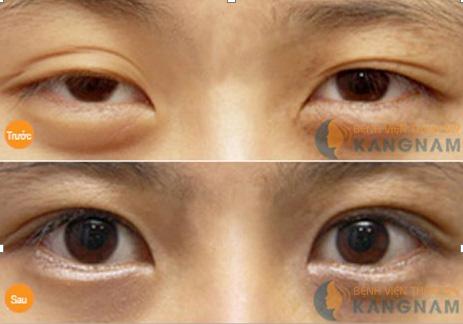 giảm mỡ mí mắt1111