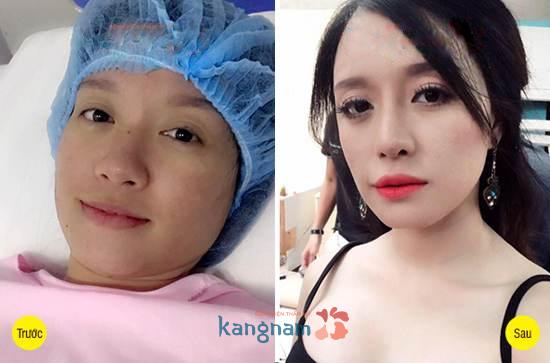 Hình ảnh trước và sau cắt mí mắt6