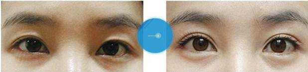Hình ảnh trước và sau cắt mí mắt16