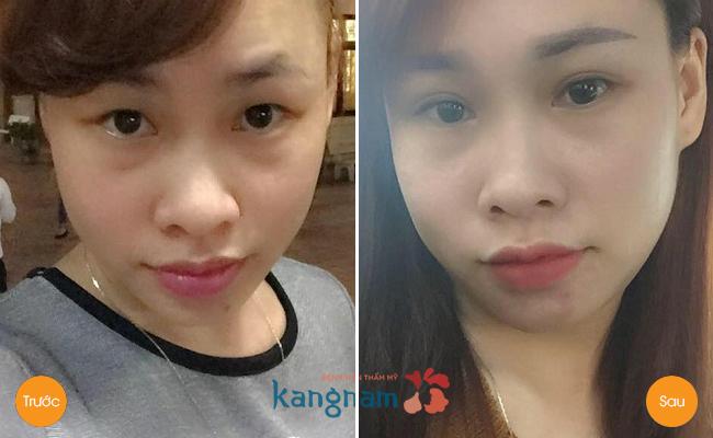 Hình ảnh trước và sau cắt mí mắt17