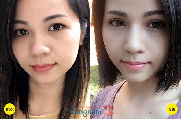 Hình ảnh trước và sau cắt mí mắt1