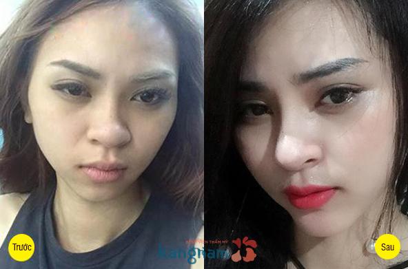 Hình ảnh trước và sau cắt mí mắt2