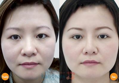 Hình ảnh trước và sau cắt mí mắt15