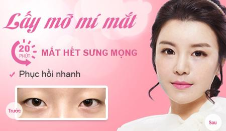Lấy mỡ mí mắt tại Kangnam hết 7 triệu