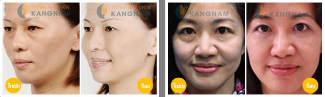 Lấy mỡ mí mắt ở đâu tốt nhất ở Hà Nội và TP.HCM? 1