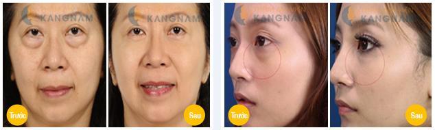 Lấy mỡ mí mắt ở đâu tốt nhất ở Hà Nội và TP.HCM? 3