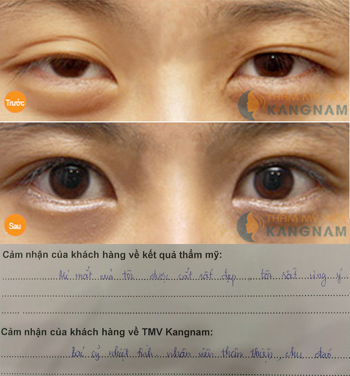 Lấy mỡ mí mắt có để lại sẹo không