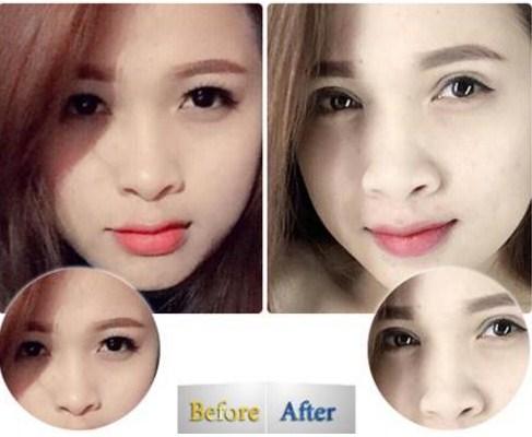 Chị Bích Hương ngày càng trẻ hơn nhờ cách chữa sụp mí mắt độc đáo