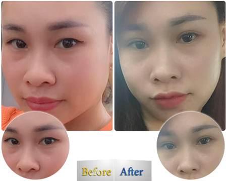 Chị Tuyết chia sẻ cách chữa sụp mí mắt cực hiệu quả của mình