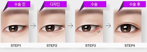 mở rộng đuôi mắt111