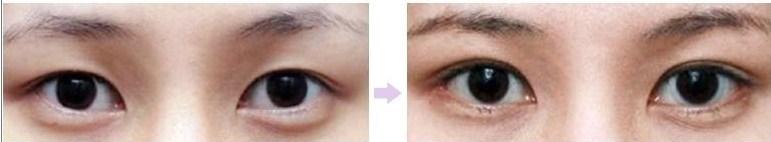 Mở rộng khóe mắt 2