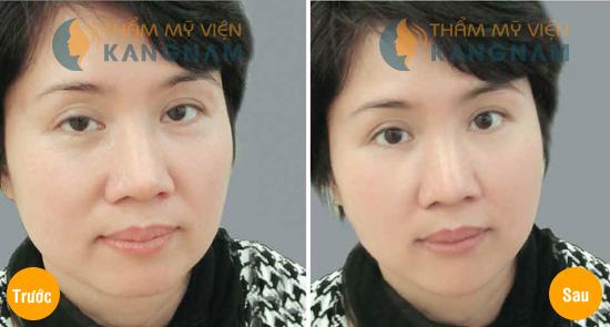 Nâng mí mắt là gì? Nâng mí không phẫu thuật có an toàn? 3