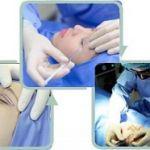 Nâng mí mắt bí sụp không phẫu thuật – Sở hữu mắt to tròn, đẹp tự nhiên
