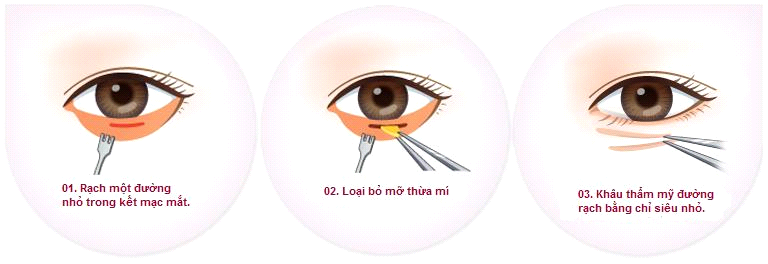 Nguyên nhân gây bọng mỡ mắt