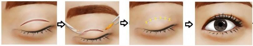 Nguyên nhân gây bọng mỡ mắt3