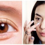 Nguyên nhân gây bọng mỡ mắt và cách khắc phục hiệu quả nhất 2016