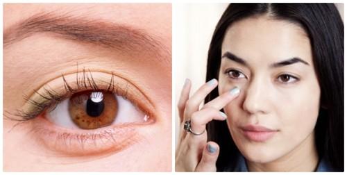 Nguyên nhân gây bọng mỡ mắt1