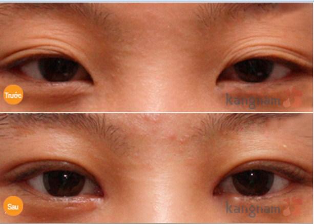 Phẫu thuật cắt mí mắt Eyelid