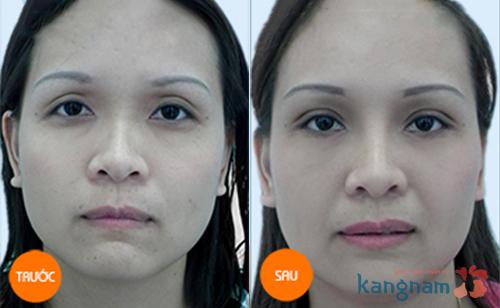 Phẫu thuật cắt mí mắt trên Hàn Quốc